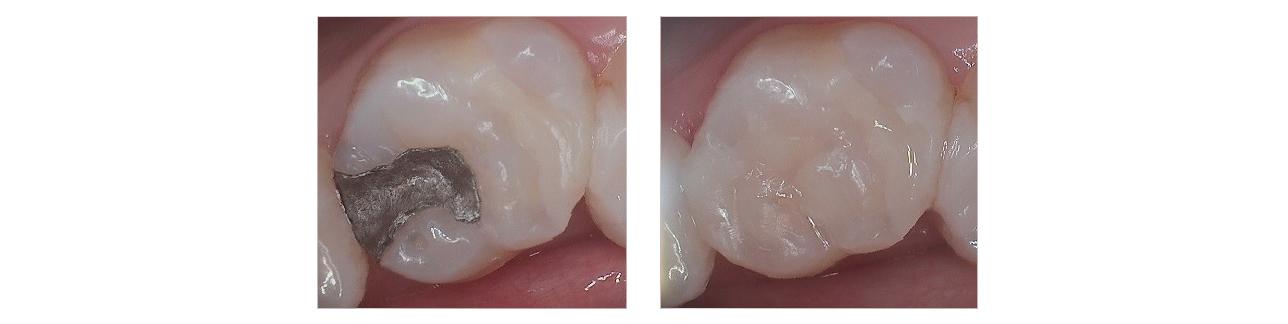 Amalgam-to-Composite